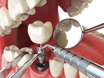 South Jersey Dental Implants