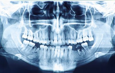 Dental Checkups, X-Rays and Cleanings